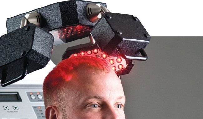Red Light Therapy For Hair Loss A Growing Solution