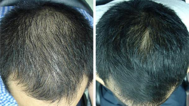red light therapy for hair loss before and after