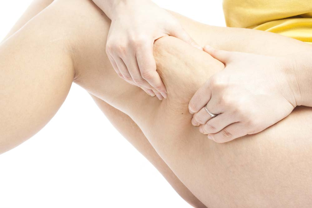 does red light therapy work on cellulite
